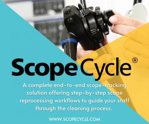 ScopeCycle 300×250
