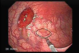 Colorectal-Endoscopy