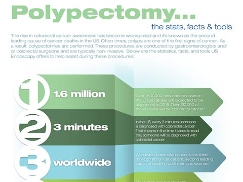 polypectomy-infographic
