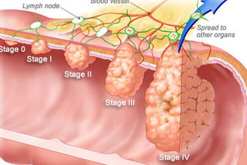 Adjuvant Chemotherapy In Early Stage Colon Cancer May Improve Survival Endopro Magazine